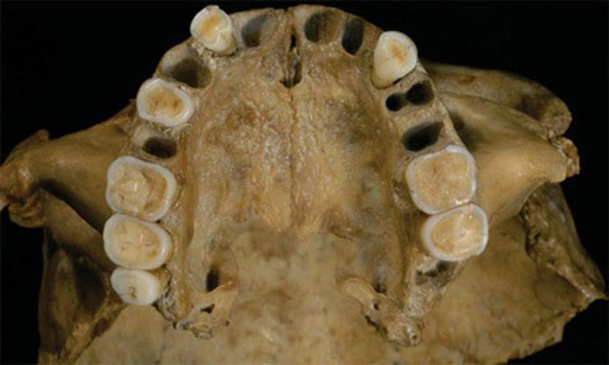 """Romaniasta löytyneessä 30 000 vuotta vanhassa leuassa on sekä nykyihmisen että neandertalilaisen piirteita. Kuva: <span class=""""photographer"""">National Academy of Sciences</span>"""