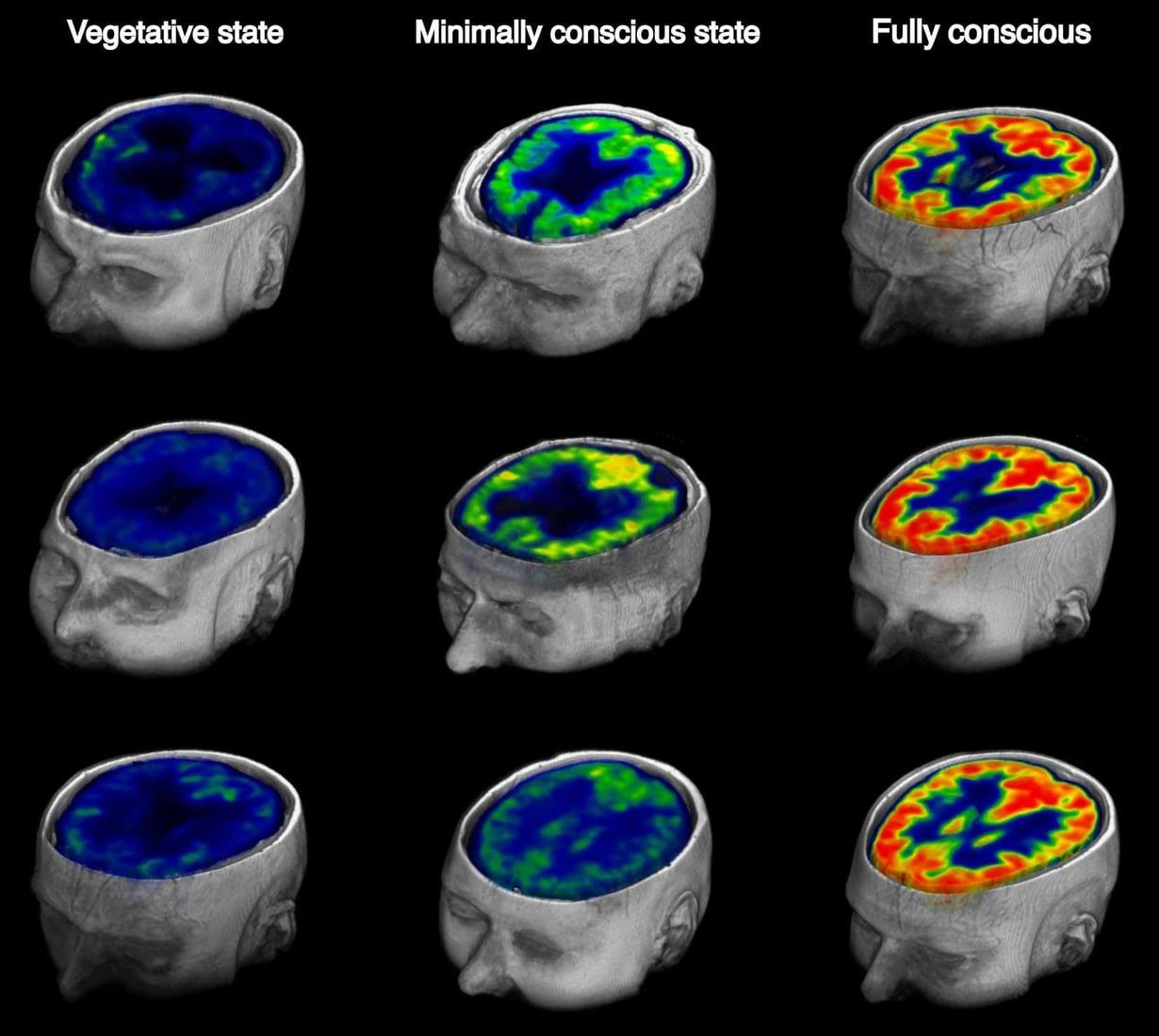 Kuvasarja oikealla näyttää, miten terveen ihmisen aivot kuluttavat glukoosia. Vasemmanpuoleinen henkilö on täysin tiedottomassa tilassa. Keskimmäisen tietoisuus toimii osittain. Kuva: Krediitit: Stender et al.