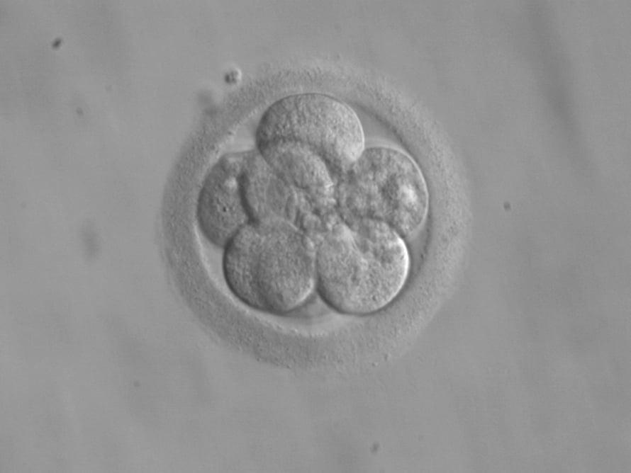 "Ihmisen alkio 8-soluvaiheessa. Kuva: <span class=""photographer"">eker / Wikimedia Commons</span>"