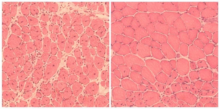 """Lihasten uudistuminen parani solujen ohjelmoinnin ansiosta. Vasemmassa kuvassa on vanhojen hiirten heikosti korjautuvaa lihaskudosta, oikeassa vanhojen, uudelleen ohjelmoitujen hiirten paremmin uusiutunutta kudosta. Kuva: <span class=""""photographer"""">Salk Institute</span>"""