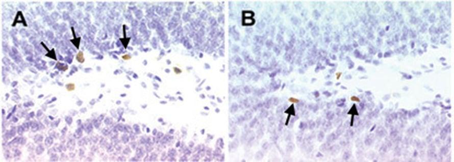 """Unen puutteesta kärsivillä rotilla havaittiin vajausta aivosolujen määrässä (oikeanpuoleinen kuva) verrattuna normaalisti nukkuneisiin eläimiin (vasemmalla). Kuva: <span class=""""photographer"""">National Academy of Sciences.</span>"""