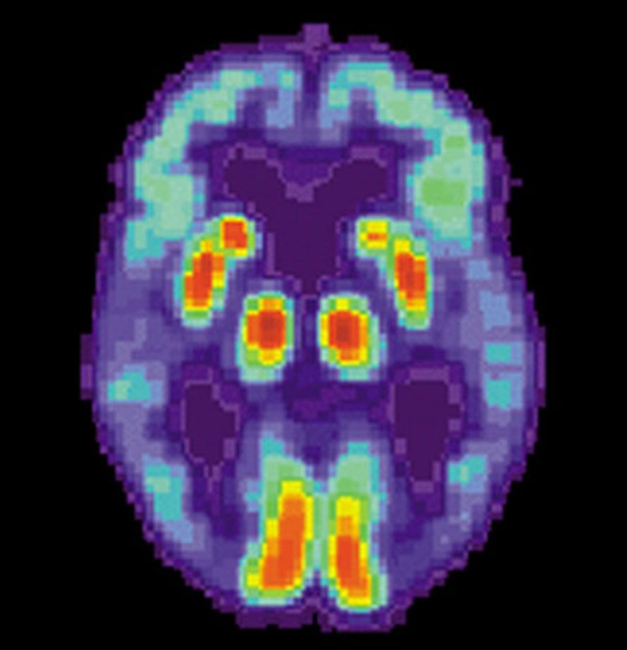 """PET-kuva Alzheimerin tautia sairastavan henkilön aivoista, joiden ohimolohkoissa näkyy toiminnan heikkeneminen.  Kuva: <span class=""""photographer""""><A HREF=http://en.wikipedia.org/wiki/File:PET_Alzheimer.jpg>Wikimedia Commons</A>.</span>"""