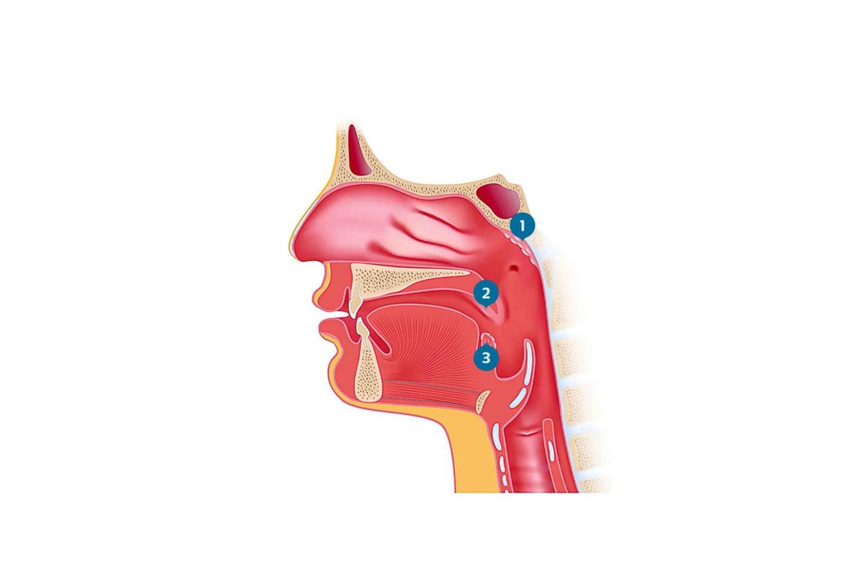 Kita- (1) ja nielurisoja (2) täydentää kielirisa (3). Kuva: Shutterstock