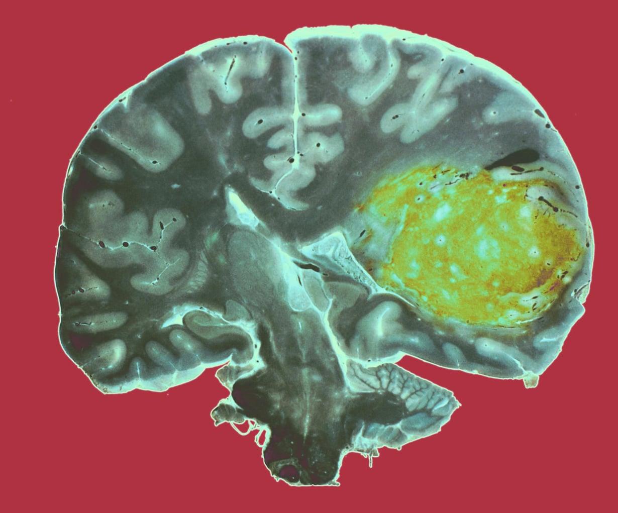 Glioblastooma on aivojen tukikudosten aggressiivinen kasvain. Se erottuu värjätyssä kuvassa keltaisena. Kuva: CNRI/SCIENCE PHOTO LIBRARY