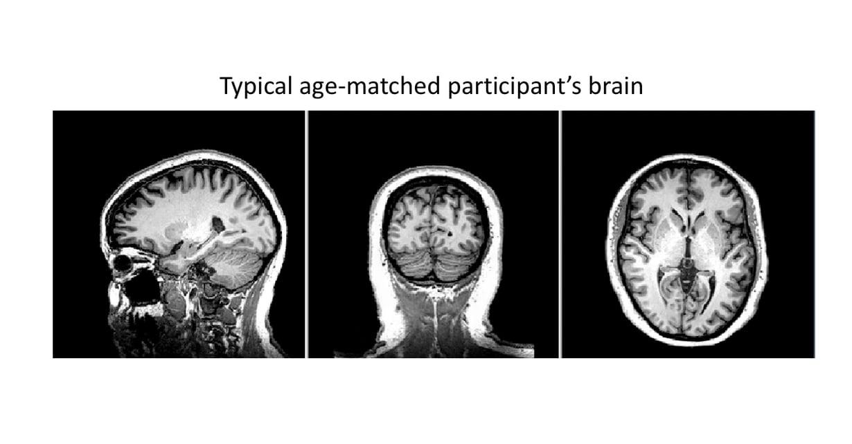 Terveen ikätoverin aivot. Kuva: Western-yliopisto