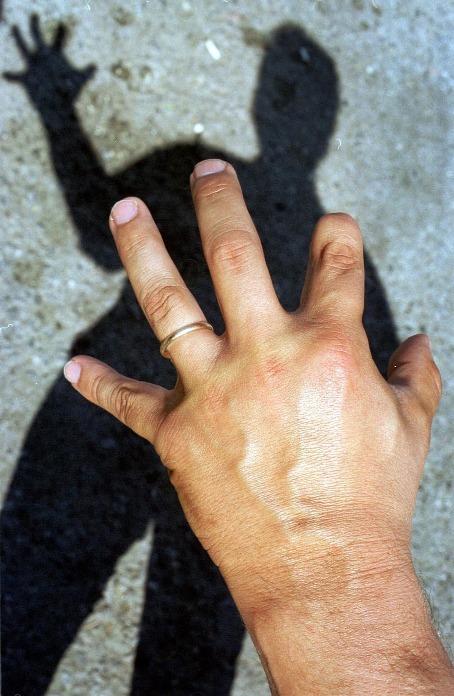 """Sormensa tai kätensä menettäneillä on tuntemuksia, että raaja tai sen osa on yhä paikallaan. Kuva: <span class=""""photographer"""">Reijo Hietanen</span>"""