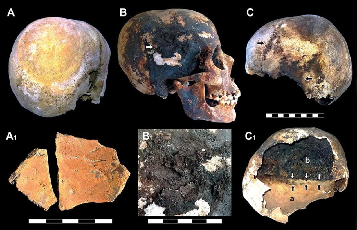 Tutkimuksessa tarkasteltuja uhrien kalloja. Kuva: Petrone et al / Plos One